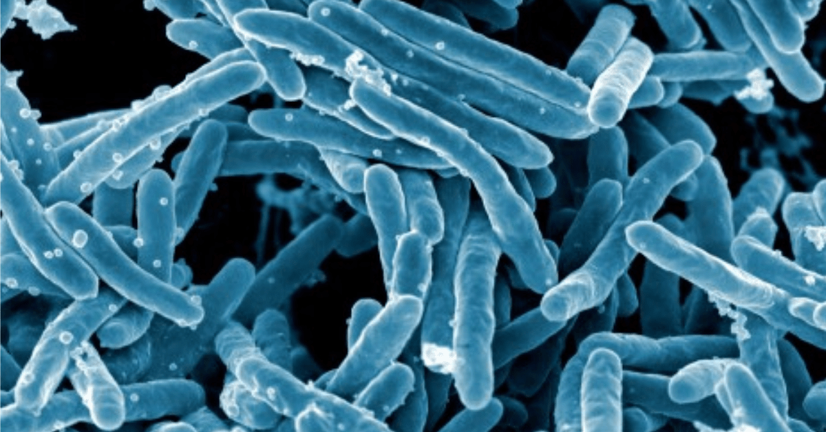Researchers used AI to discover an antibiotic that can kill resistant bacteria